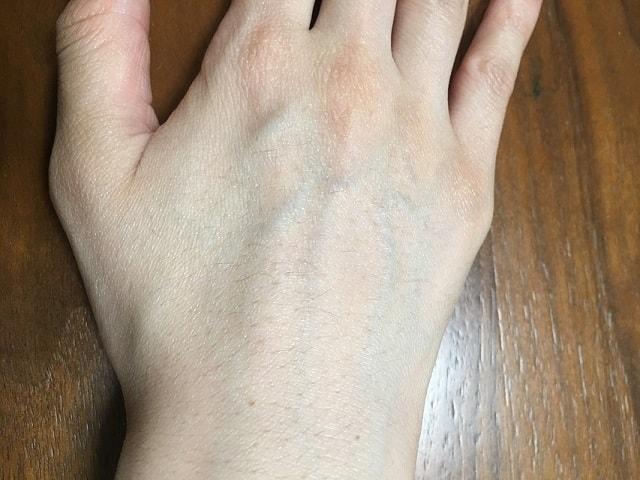手の甲 脱毛1回目